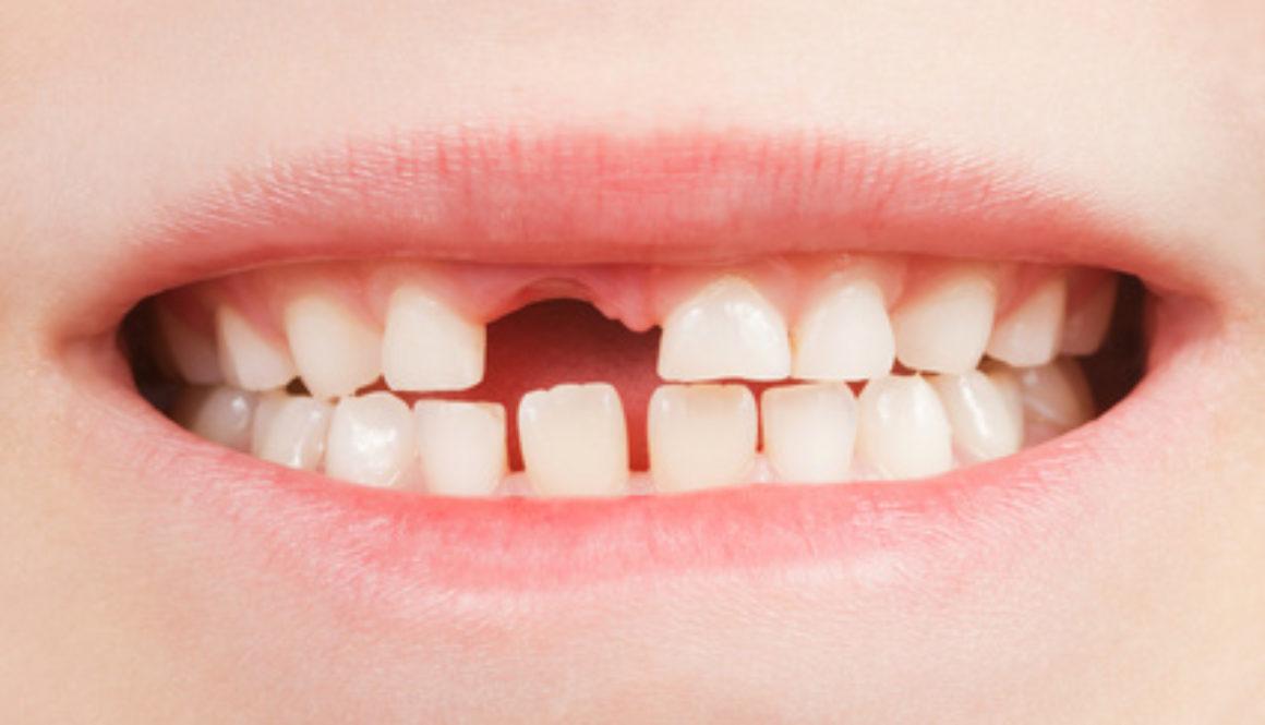 Kind mit Zahnlcke