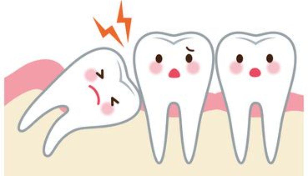 zęby mądrości