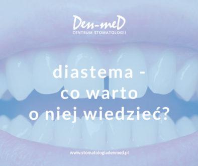diastema - co warto o niej wiedzieć